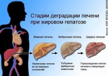 Жировой гепатоз анализ крови